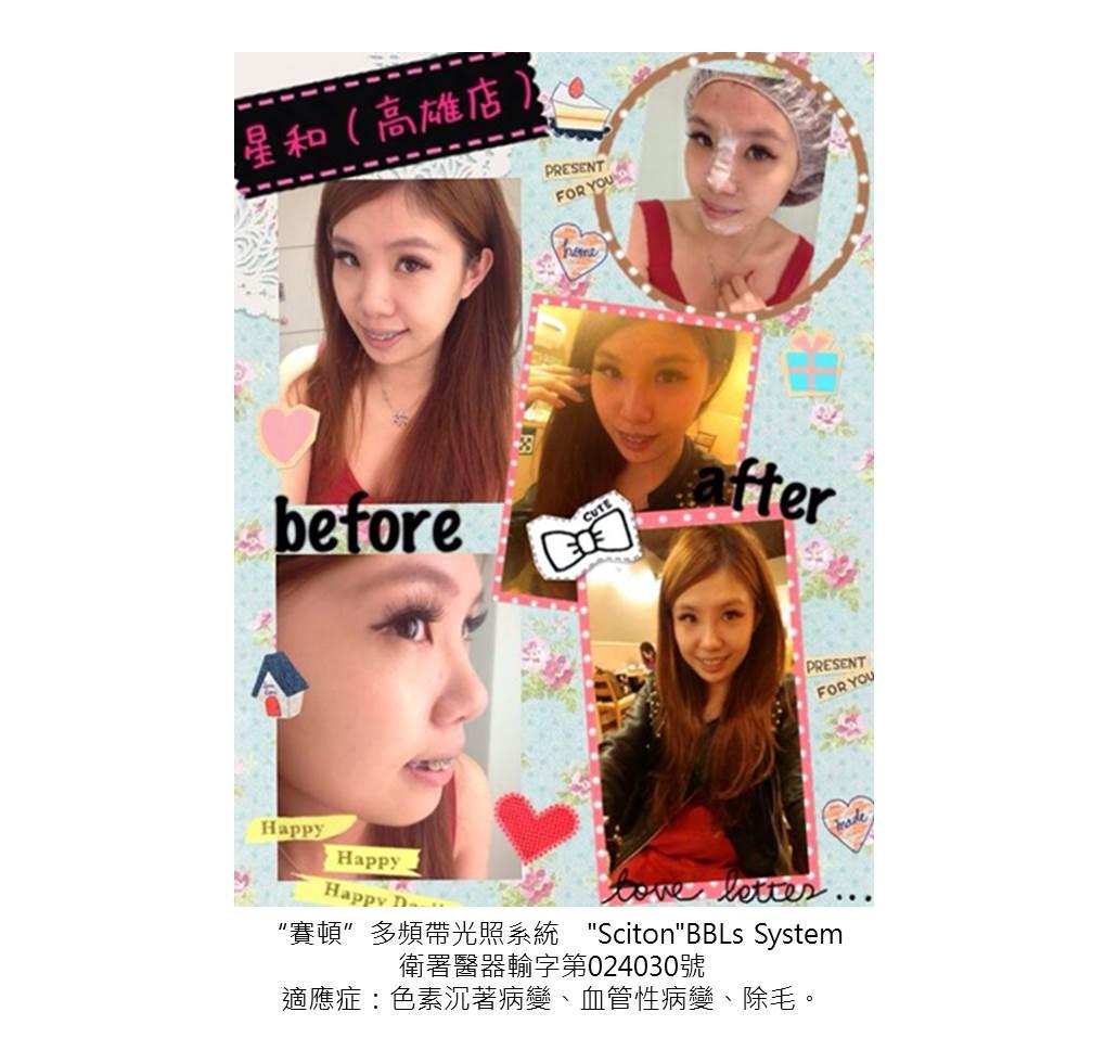高雄醫美星和診所_脈衝光_陳青青、Cherry Wang、Cat Ling 01