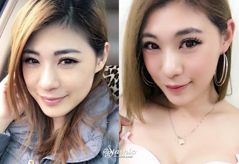 高雄醫美星和診所_肉毒桿菌瘦小臉_Jojo 01