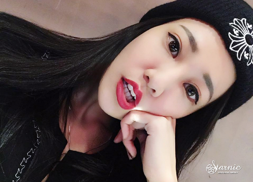 星和台中_天使肉毒瘦小臉_阿寶01