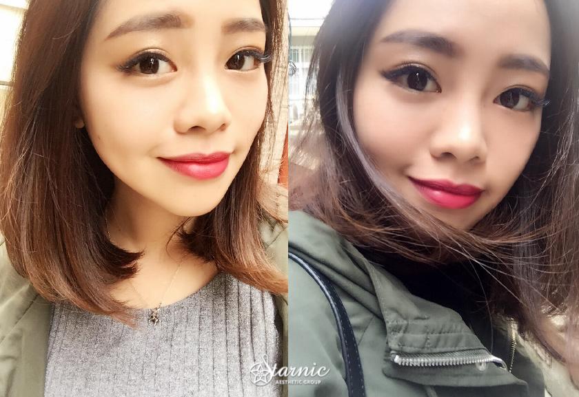 星采大安_眼袋手術_方穎涵醫師01