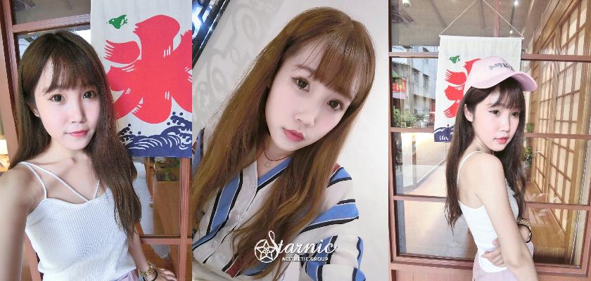 竹北醫美星和診所_肉毒瘦小臉_曾鈺婷