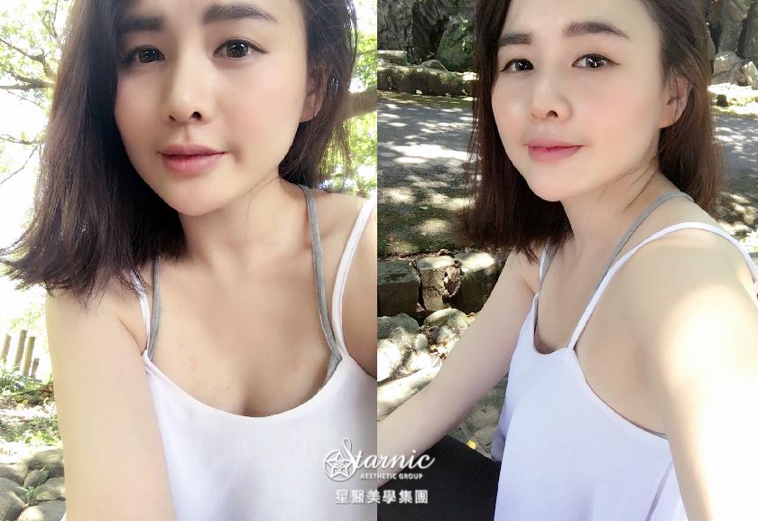 星采大安_自體肋軟骨隆鼻_邱大睿醫師14