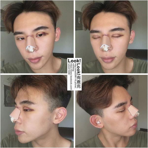 星采整形外科診所(大安)_割雙眼皮+Goretex三段式鼻雕+敲鼻骨_LOOK鹿克