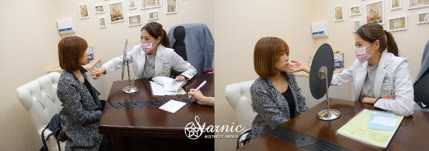 台南醫美星和診所_Ultherapy極線音波拉提_Karen