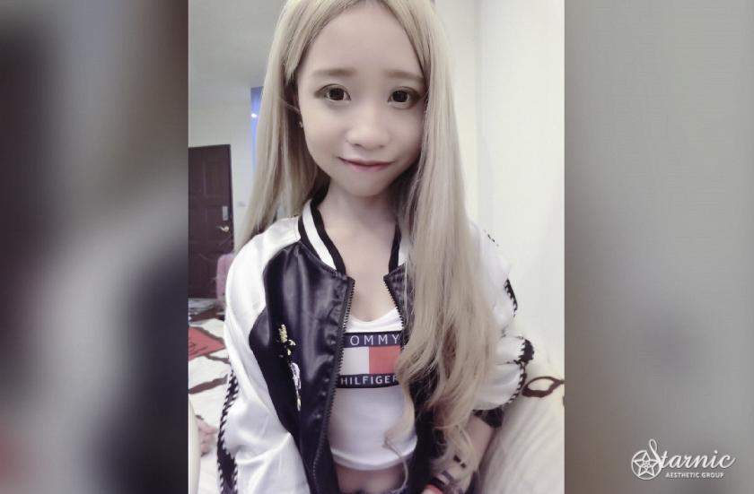 星和台中_肉毒瘦小臉_簡琳02