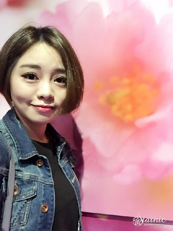 星采大安_眼袋手術_方穎涵醫師02