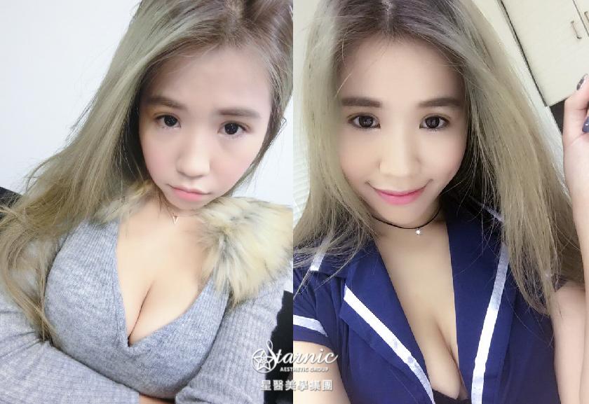 星采大安_縫雙眼皮手術_甜心Q匠20
