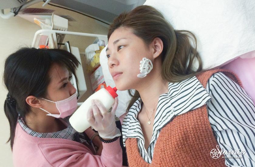 高雄醫美星和診所_肉毒桿菌瘦小臉_Jojo 05