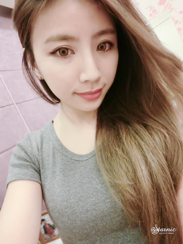 竹北醫美星和診所_天使肉毒桿菌瘦小臉_藍忻雅