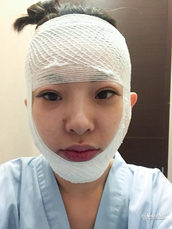 星采整形外科診所_3D列印骨水泥下巴+威塑雙下巴_Vina 07