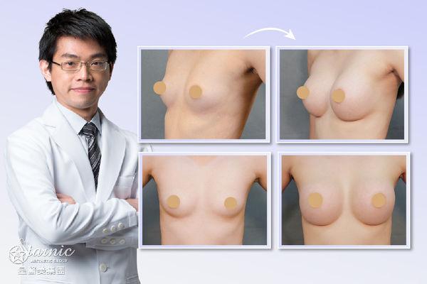 【果凍矽膠隆乳】星采大安/邱大睿醫師-給妳名模般的完美胸線!