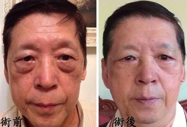 【眼袋去除手術】星和台中/邱維誠醫師-明亮雙眼的天敵,我要幫老爸消除眼袋、擺脫老態