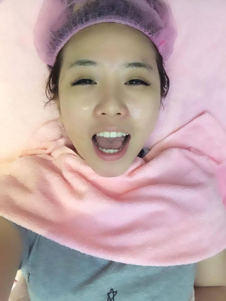 【杏仁酸煥膚】星采整形外科診所(大安)-擠粉刺真的好痛,但是變好乾淨!!~- 鄭茵聲 Alina Cheng