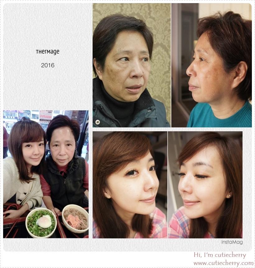 【電波拉皮】星采古亭/楊志雄醫師- Love U 媽咪♥希望妳一年比一年更年輕♪全效電波拉皮_翠蕊