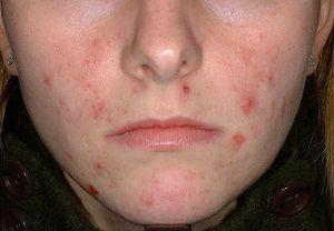 長時間戴口罩,臉上狂冒痘痘和粉刺? 一次教你四種預防口罩肌的關鍵方法!