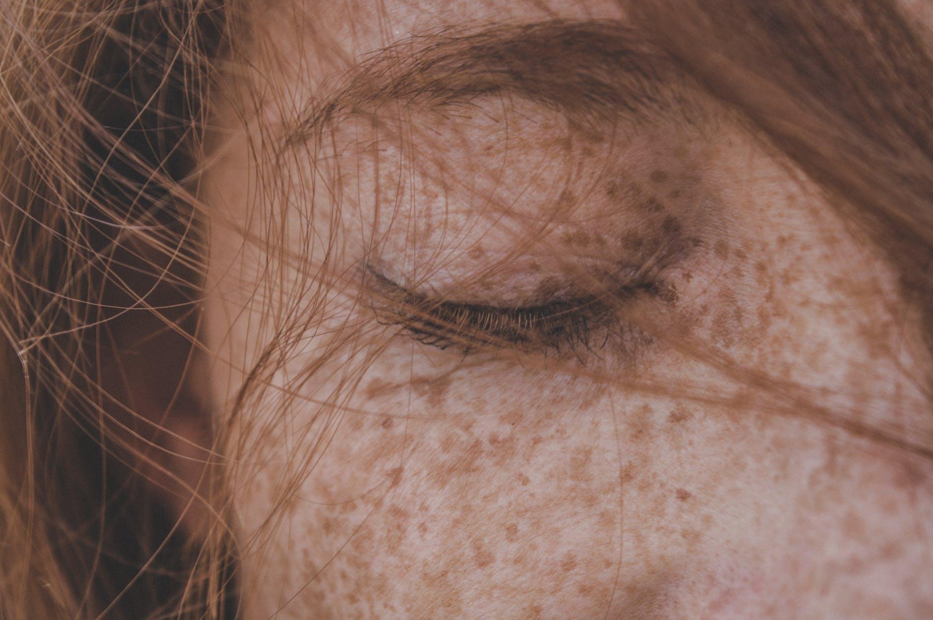 學會這六種除斑方法!簡單搞定臉上的斑斑點點