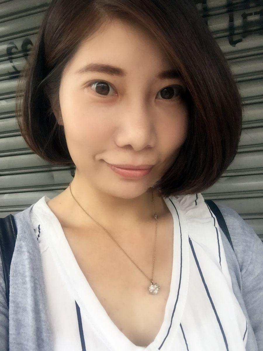 星和台北_縫雙眼皮手術_黃仁吳醫師11