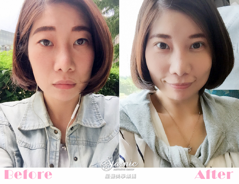 星和台北_縫雙眼皮手術_黃仁吳醫師02