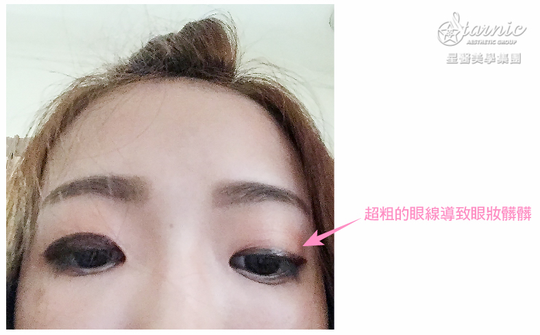 星和台北_縫雙眼皮手術_黃仁吳醫師03