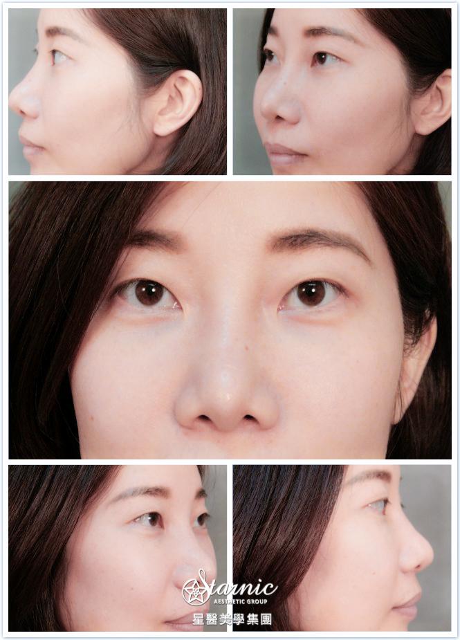 星和台北_縫雙眼皮手術_黃仁吳醫師06