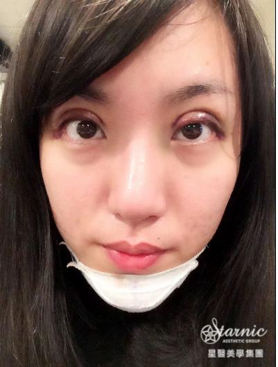 星采大安_GORETEX隆鼻+敲鼻骨+縮鼻翼、前額拉皮、骨水泥豐額、墊下巴、割雙眼皮+提眼瞼肌_邱大睿醫師06