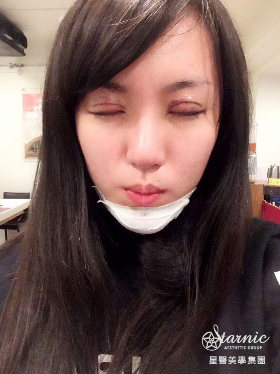 星采大安_GORETEX隆鼻+敲鼻骨+縮鼻翼、前額拉皮、骨水泥豐額、墊下巴、割雙眼皮+提眼瞼肌_邱大睿醫師07