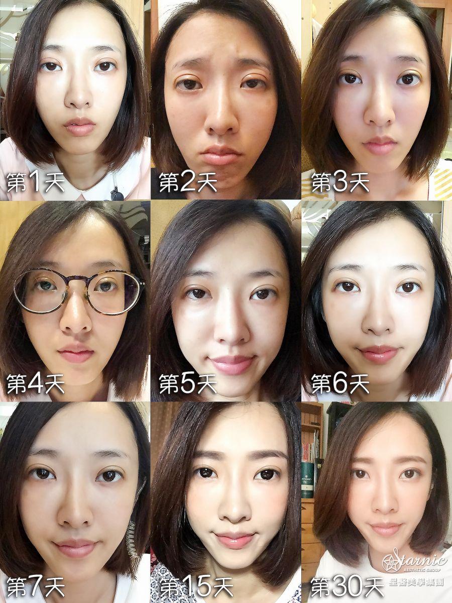 星和台北_縫雙眼皮手術_黃仁吳醫師10