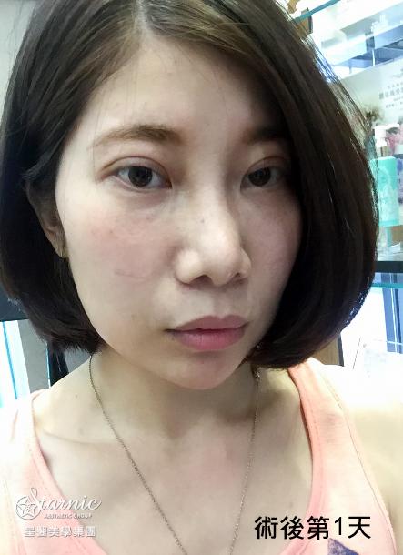 星和台北_縫雙眼皮手術_黃仁吳醫師09