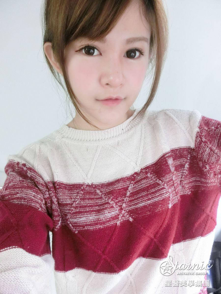 星和仁愛_韓式隆鼻_邱大睿醫師11