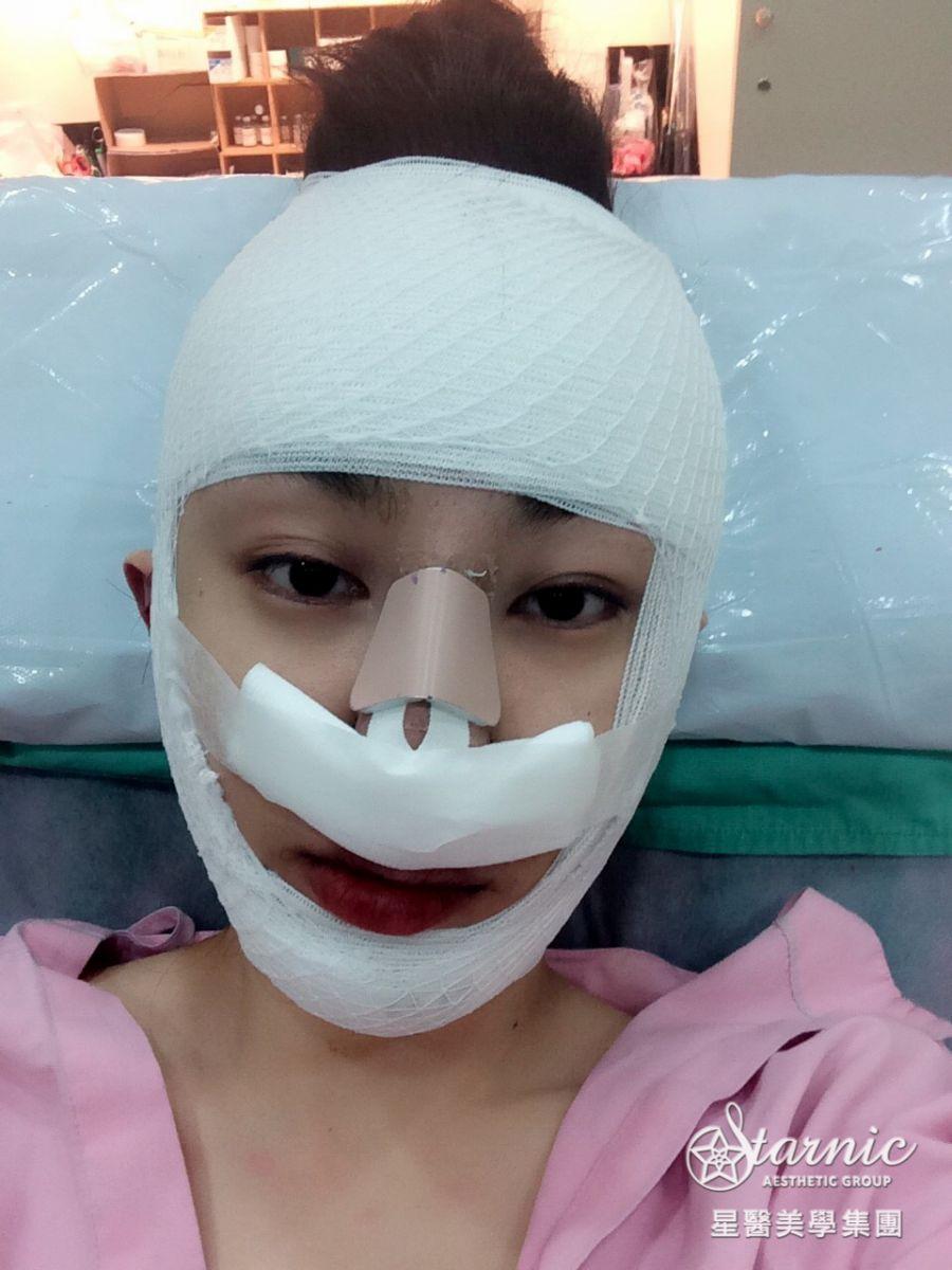 星采大安_GORETEX隆鼻+敲鼻骨+縮鼻翼、前額拉皮、骨水泥豐額、墊下巴、割雙眼皮+提眼瞼肌_邱大睿醫師10