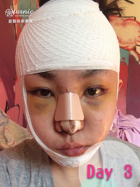 星采大安_GORETEX隆鼻+敲鼻骨+縮鼻翼、前額拉皮、骨水泥豐額、墊下巴、割雙眼皮+提眼瞼肌_邱大睿醫師12