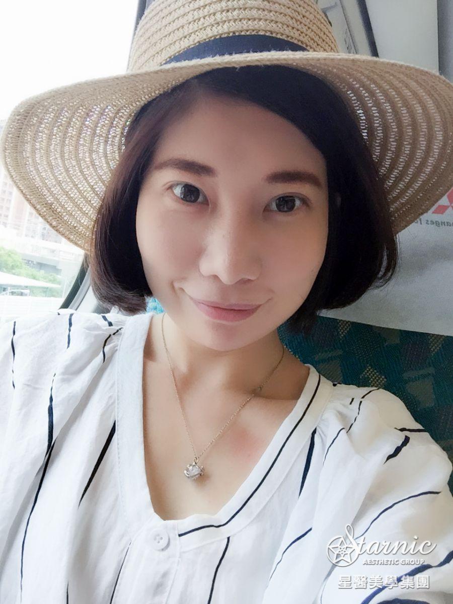 星和台北_縫雙眼皮手術_黃仁吳醫師12