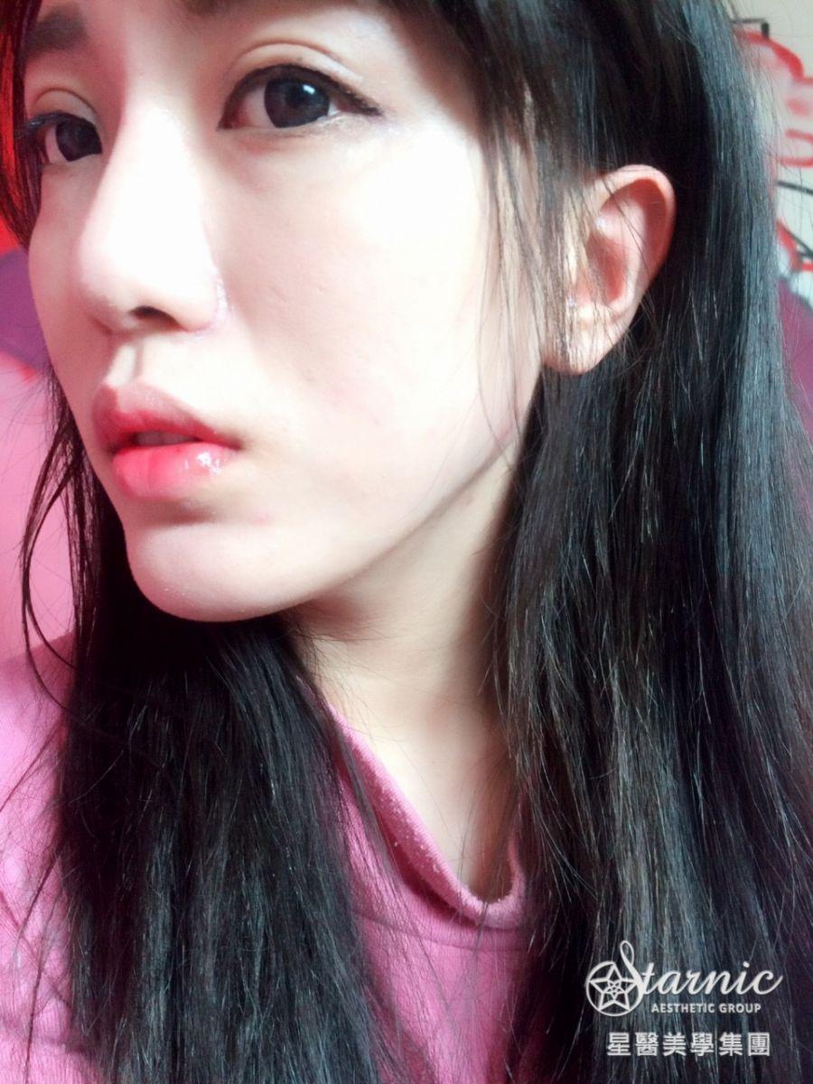 星采大安_GORETEX隆鼻+敲鼻骨+縮鼻翼、前額拉皮、骨水泥豐額、墊下巴、割雙眼皮+提眼瞼肌_邱大睿醫師13